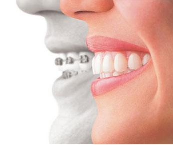 Invisalign Orthodontics Denver, River North, Englewood, CO